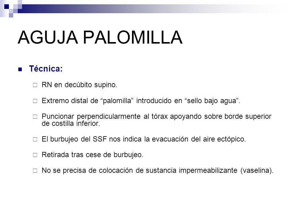 TUBO DE DRENAJE Preparación: Monitorización: Fc, Fr, SatO 2, EKG Sedoanalgesia +/- analgesia local: Lidocaina 1% sin Adrenalina.