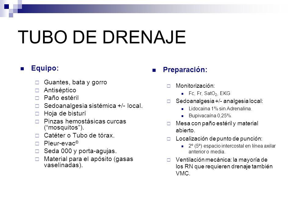 TUBO DE DRENAJE Tubos: Catéter a través de aguja Catéter sobre aguja Catéter con trócar Tipo Fuhrman (Seldinger)