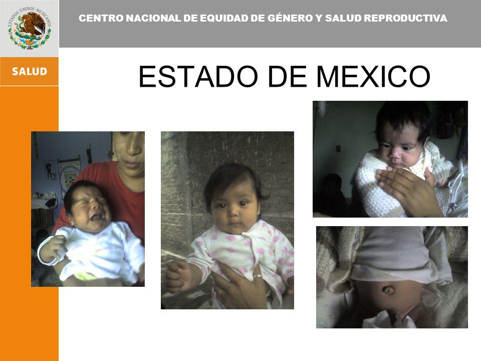 CENTRO NACIONAL DE EQUIDAD DE GÉNERO Y SALUD REPRODUCTIVA ESTADO DE MEXICO