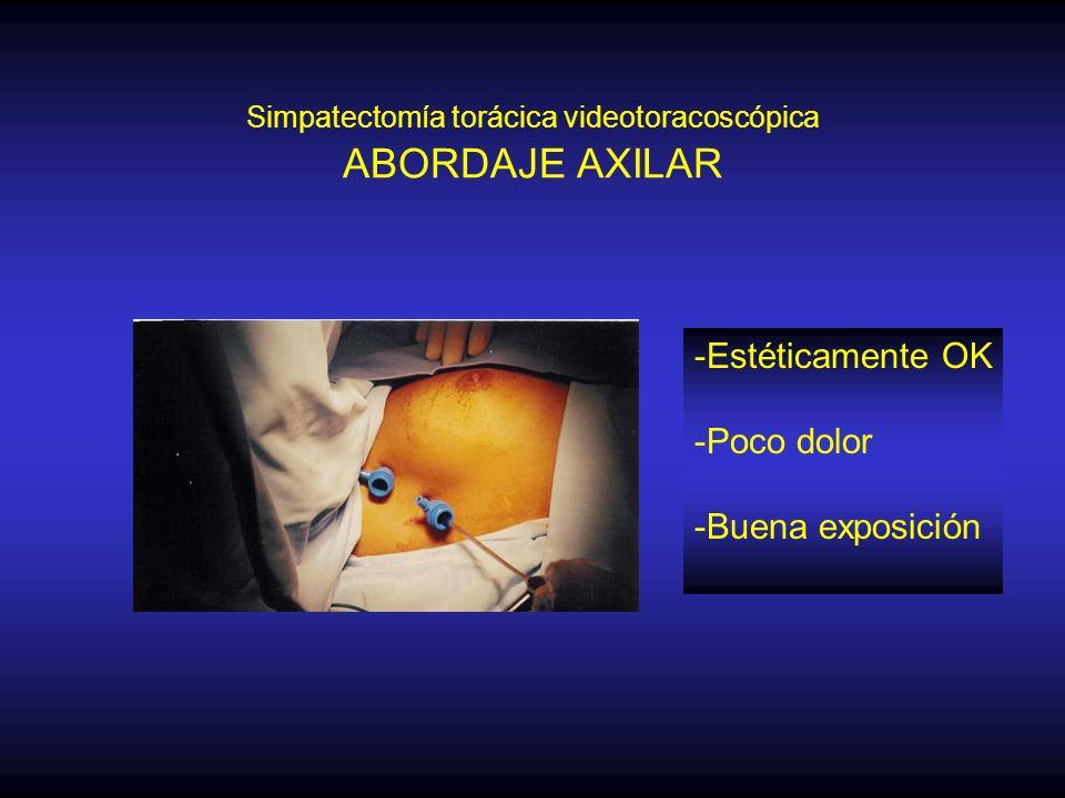 Simpatectomía torácica videotoracoscópica ABORDAJE AXILAR -Estéticamente OK -Poco dolor -Buena exposición