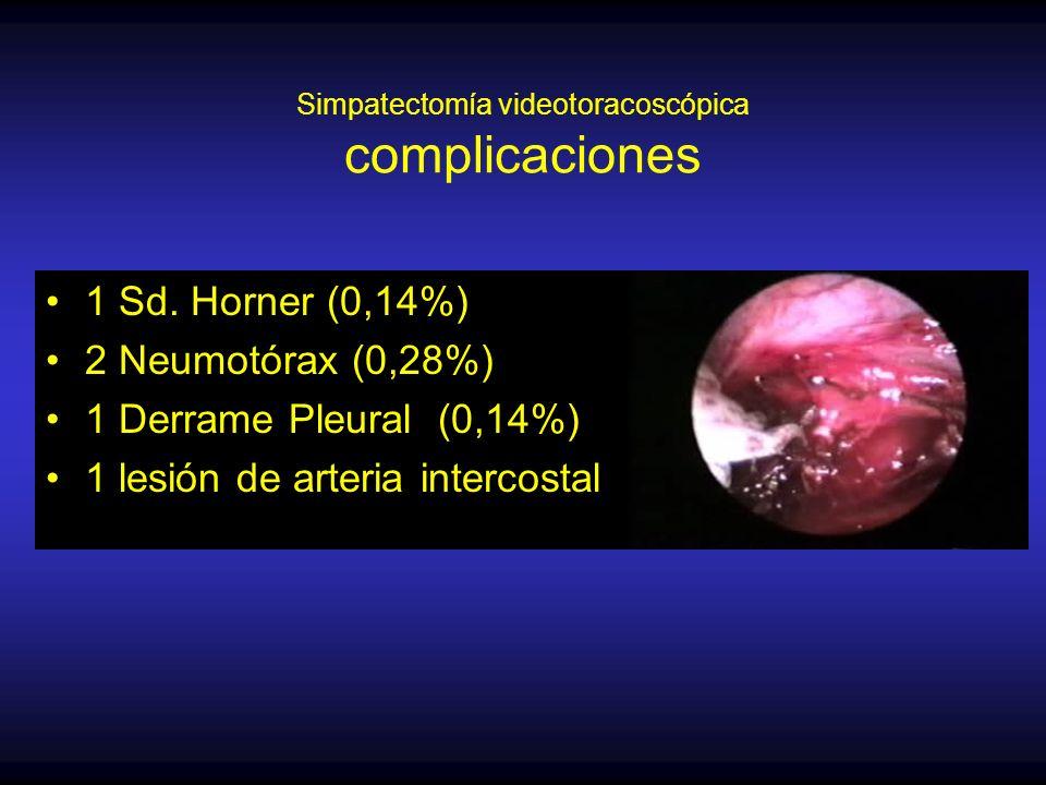 Simpatectomía videotoracoscópica complicaciones 1 Sd.
