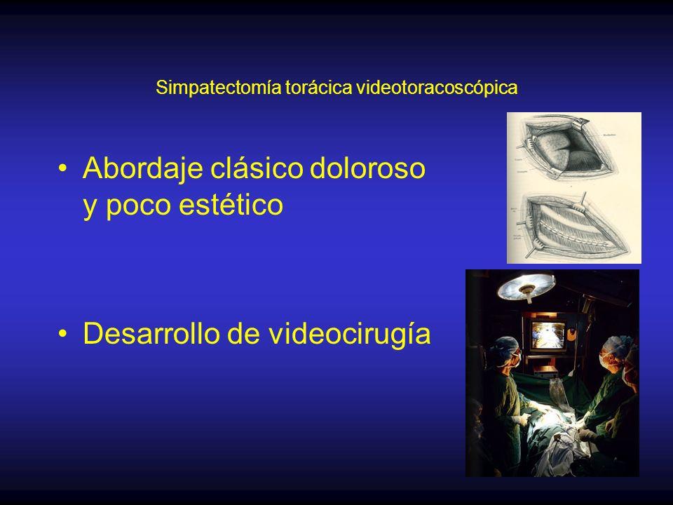 Simpatectomía torácica videotoracoscópica Técnica –Anestesia general –Intubación doble lumen –Decúbito dorsal –Abordaje bilateral en un tiempo
