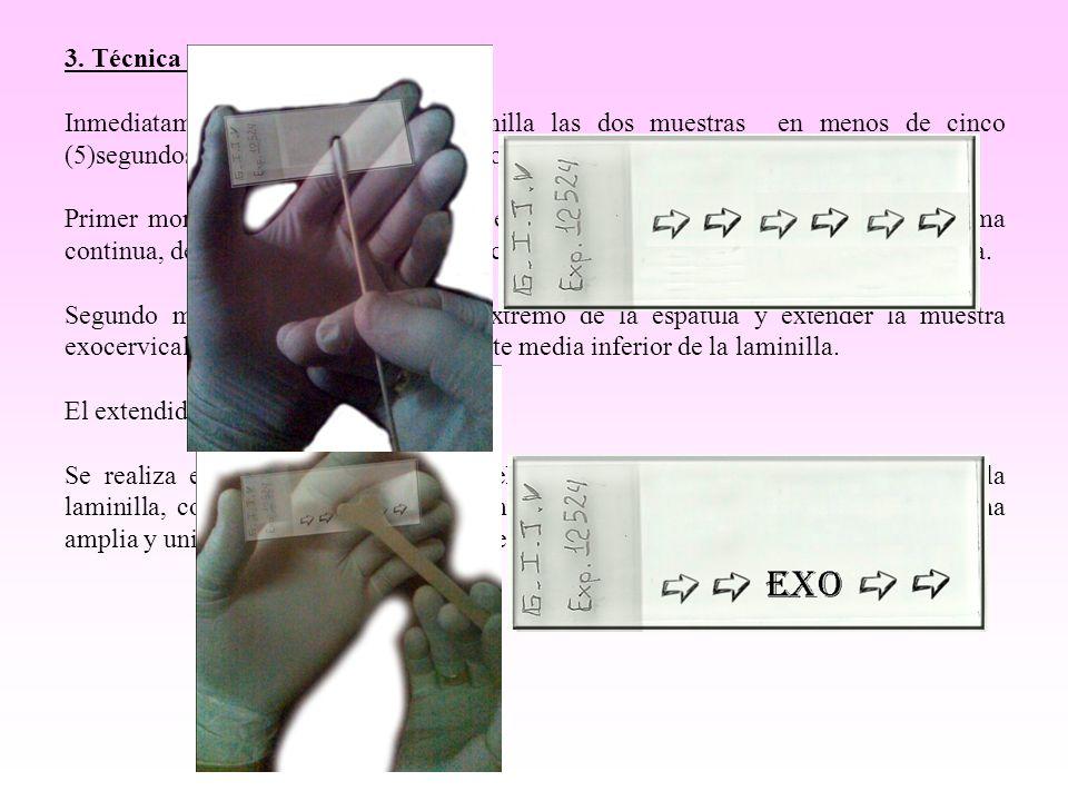 3. Técnica del extendido. Inmediatamente extender en la laminilla las dos muestras en menos de cinco (5)segundos, fijarlos en el alcohol etílico de 96
