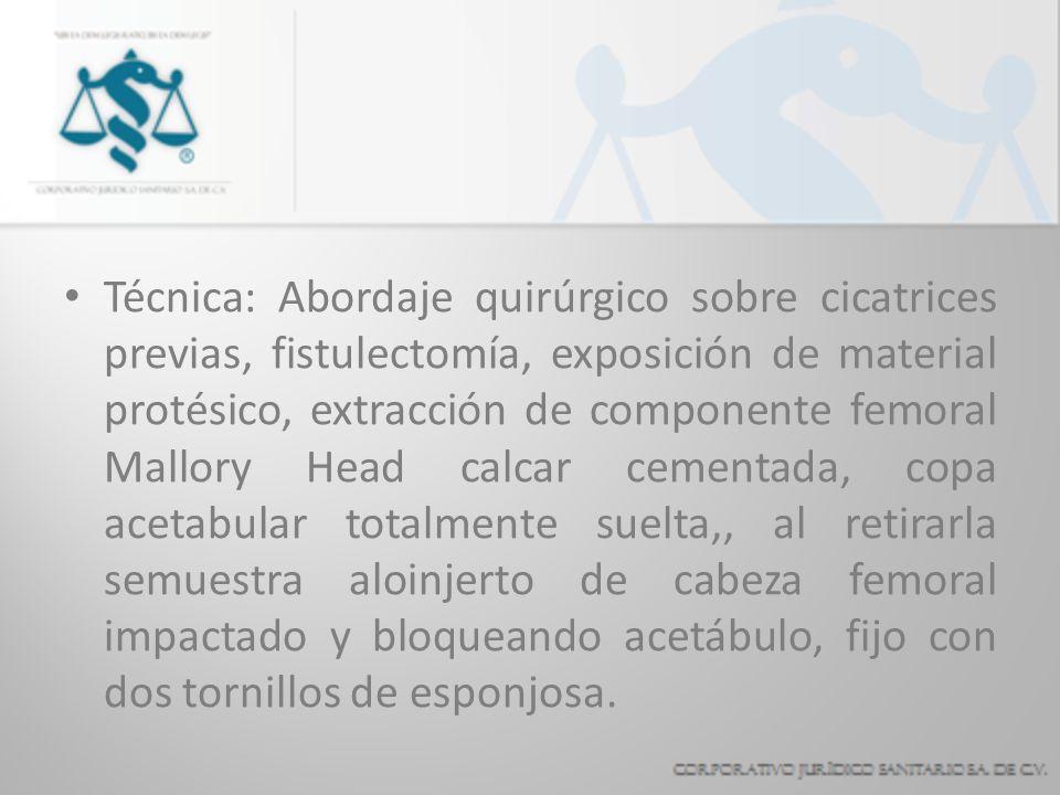 Técnica: Abordaje quirúrgico sobre cicatrices previas, fistulectomía, exposición de material protésico, extracción de componente femoral Mallory Head