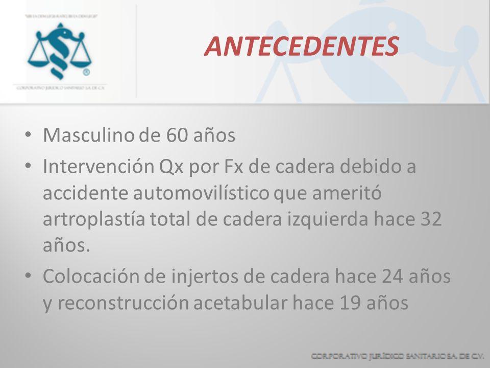 ANTECEDENTES Masculino de 60 años Intervención Qx por Fx de cadera debido a accidente automovilístico que ameritó artroplastía total de cadera izquierda hace 32 años.