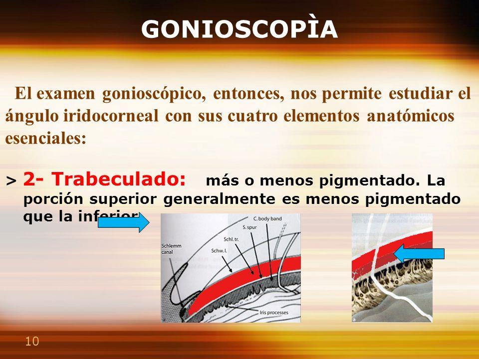10 GONIOSCOPÌA > 2- Trabeculado: más o menos pigmentado. La porción superior generalmente es menos pigmentado que la inferior. > 4- Banda ciliar : sit
