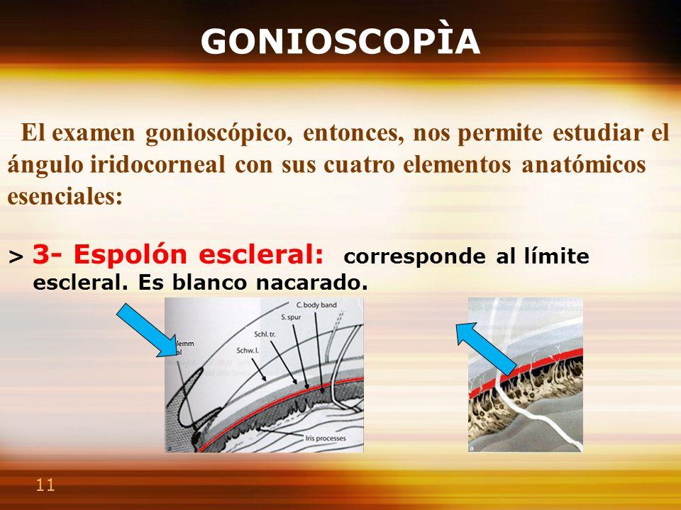 11 GONIOSCOPÌA > 3- Espolón escleral: corresponde al límite escleral. Es blanco nacarado. > 4- Banda ciliar : situada en el fondo del ángulo. Correspo