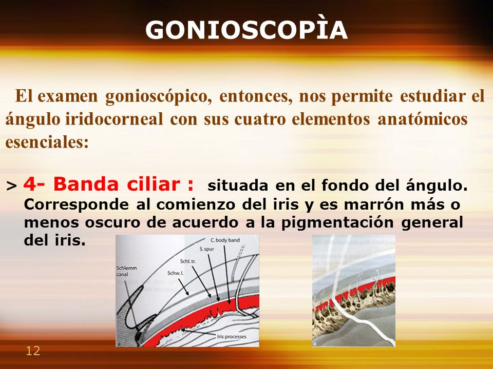 12 GONIOSCOPÌA > 4- Banda ciliar : situada en el fondo del ángulo. Corresponde al comienzo del iris y es marrón más o menos oscuro de acuerdo a la pig