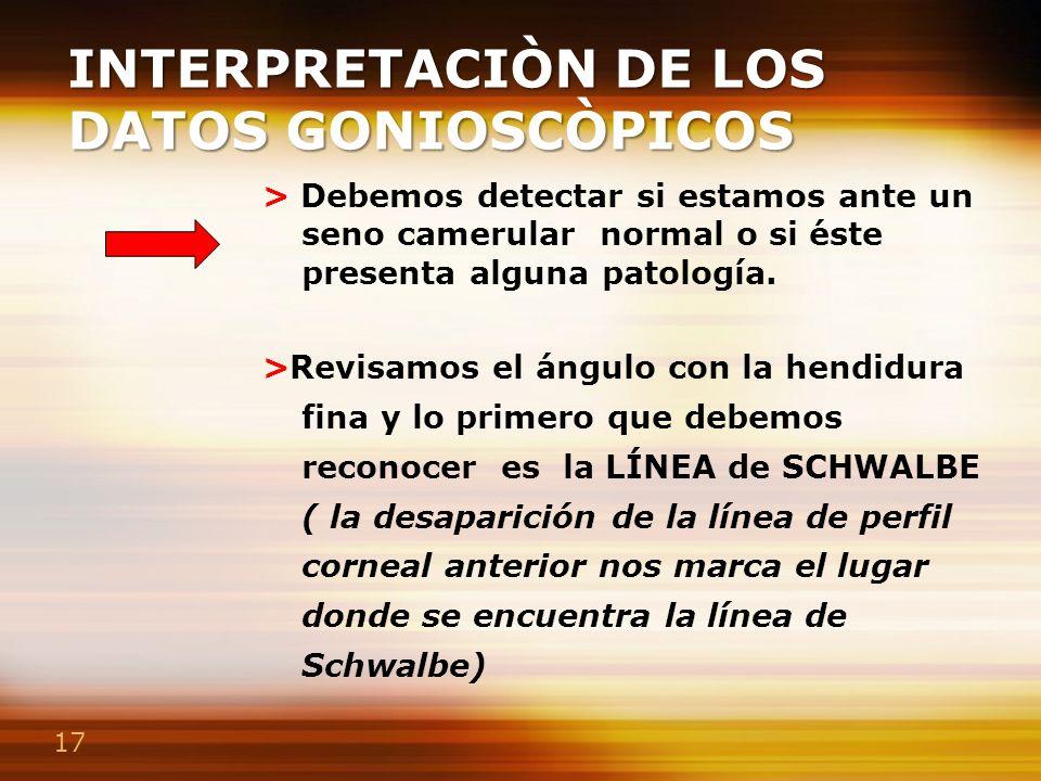 17 INTERPRETACIÒN DE LOS DATOS GONIOSCÒPICOS > Debemos detectar si estamos ante un seno camerular normal o si éste presenta alguna patología. >Revisam