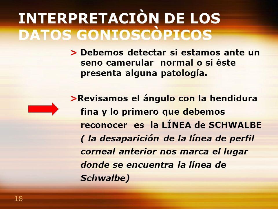 18 INTERPRETACIÒN DE LOS DATOS GONIOSCÒPICOS > Debemos detectar si estamos ante un seno camerular normal o si éste presenta alguna patología. >Revisam