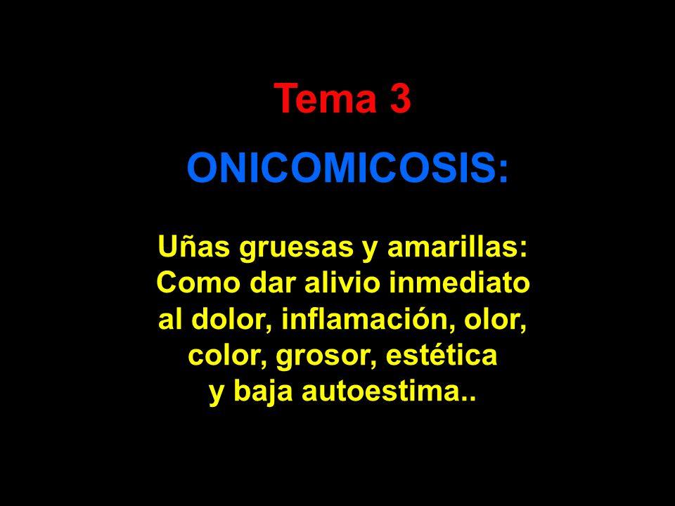 Tema 3 ONICOMICOSIS: Uñas gruesas y amarillas: Como dar alivio inmediato al dolor, inflamación, olor, color, grosor, estética y baja autoestima..