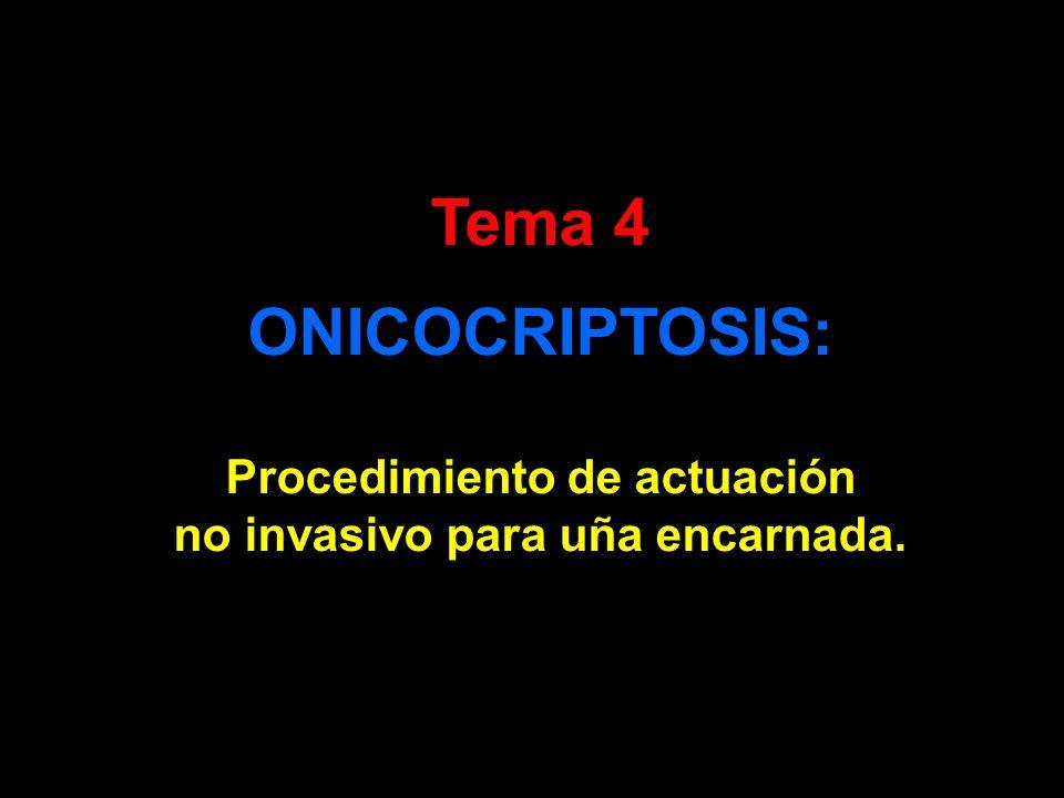 Tema 4 ONICOCRIPTOSIS: Procedimiento de actuación no invasivo para uña encarnada.