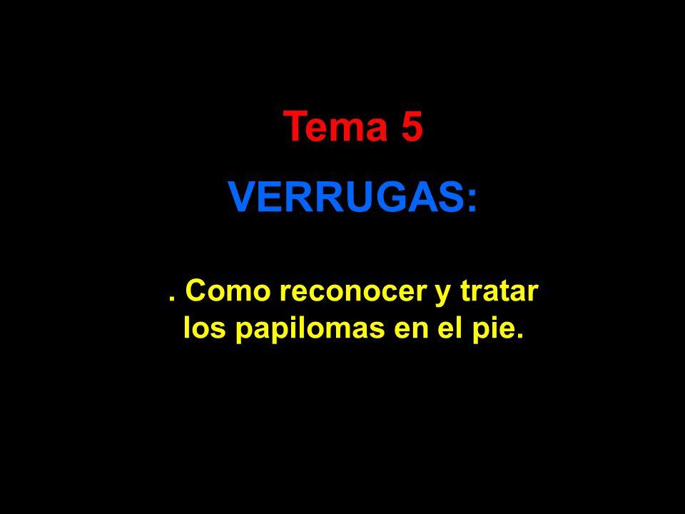 Tema 5 VERRUGAS:. Como reconocer y tratar los papilomas en el pie.