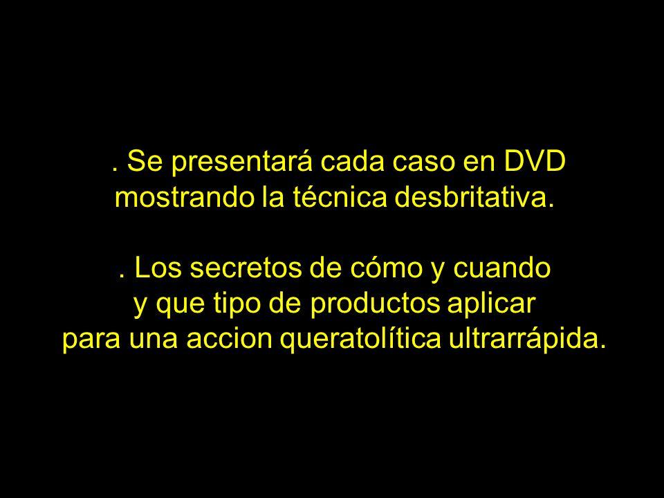 . Se presentará cada caso en DVD mostrando la técnica desbritativa.. Los secretos de cómo y cuando y que tipo de productos aplicar para una accion que