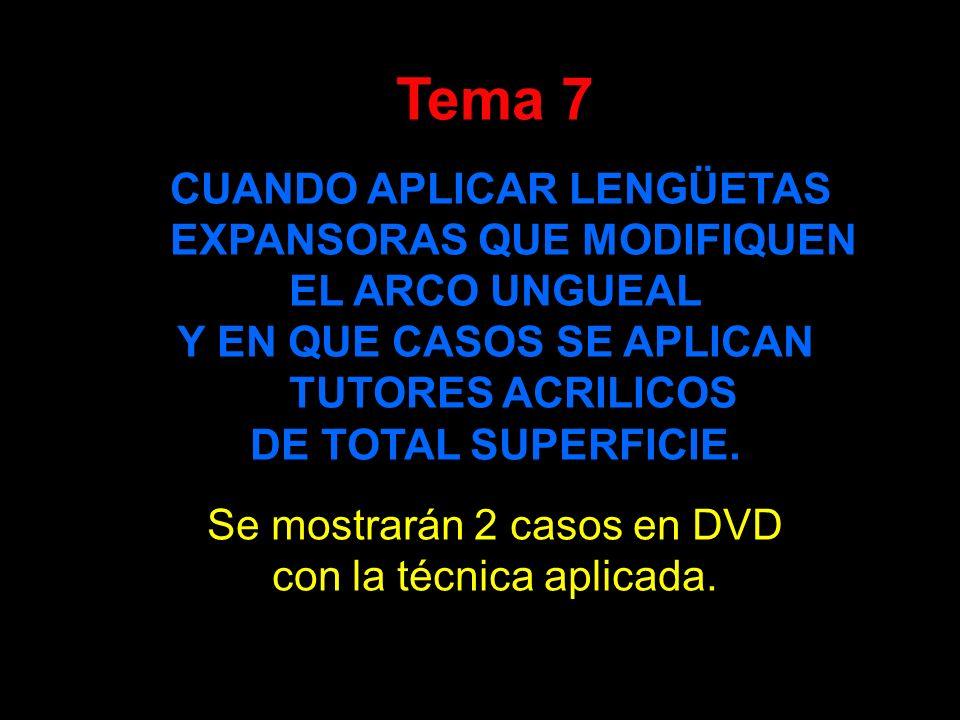 Tema 7 CUANDO APLICAR LENGÜETAS EXPANSORAS QUE MODIFIQUEN EL ARCO UNGUEAL Y EN QUE CASOS SE APLICAN TUTORES ACRILICOS DE TOTAL SUPERFICIE. Se mostrará