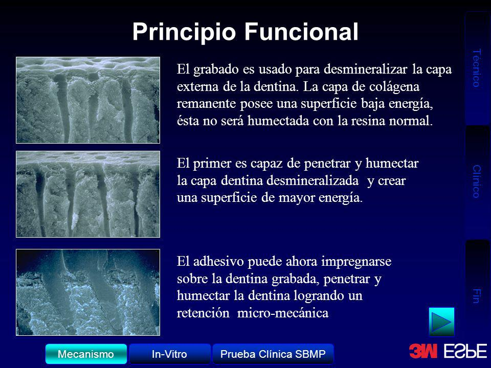 Técnico Clínico Fin Principio Funcional El grabado es usado para desmineralizar la capa externa de la dentina. La capa de colágena remanente posee una