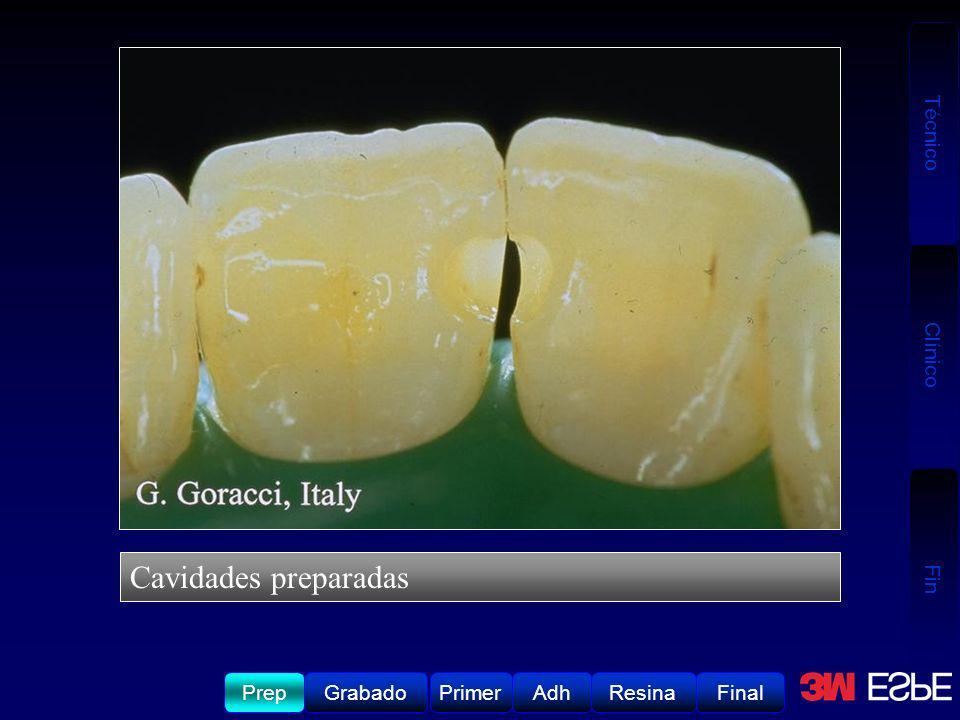 Técnico Clínico Fin Grabado del esmalte y la dentina por por 15-20 segundos.