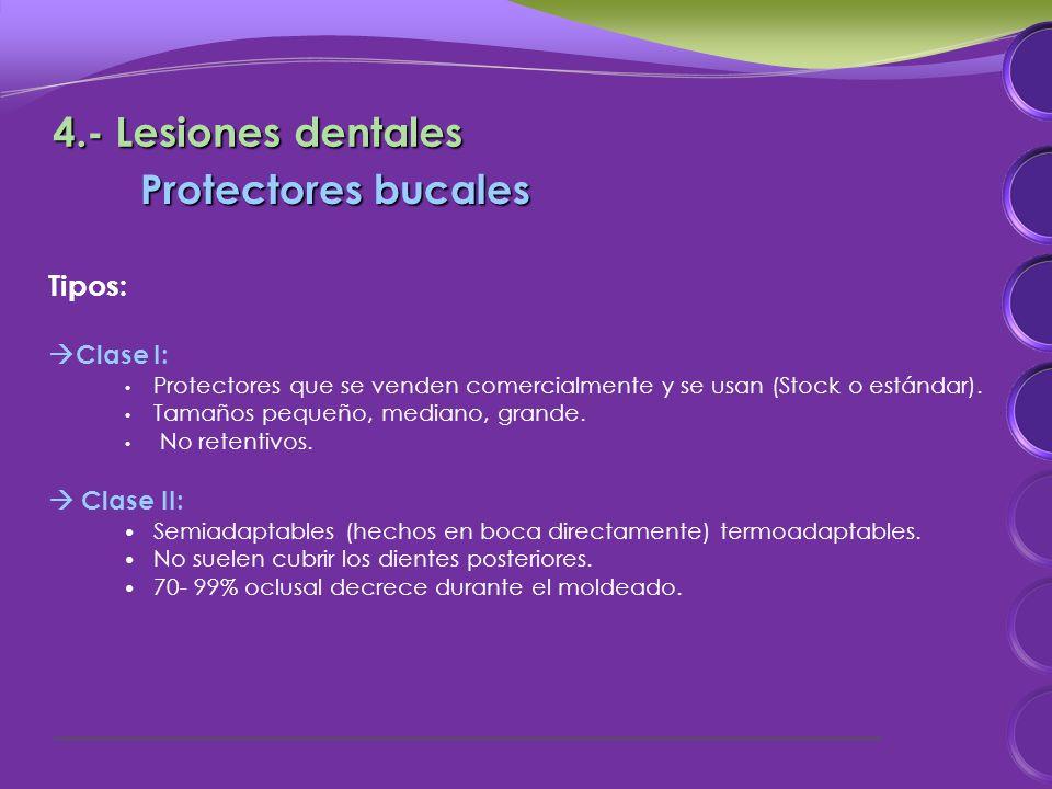 Tipos: Clase I: Protectores que se venden comercialmente y se usan (Stock o estándar).