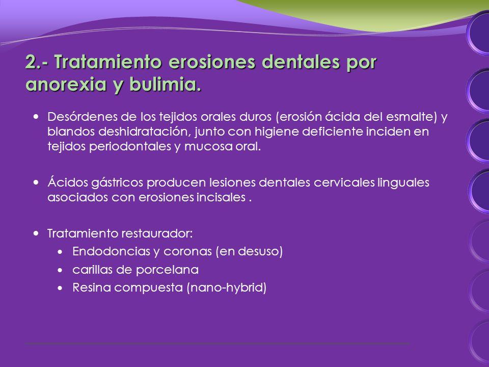 2.- Tratamiento erosiones dentales por anorexia y bulimia.