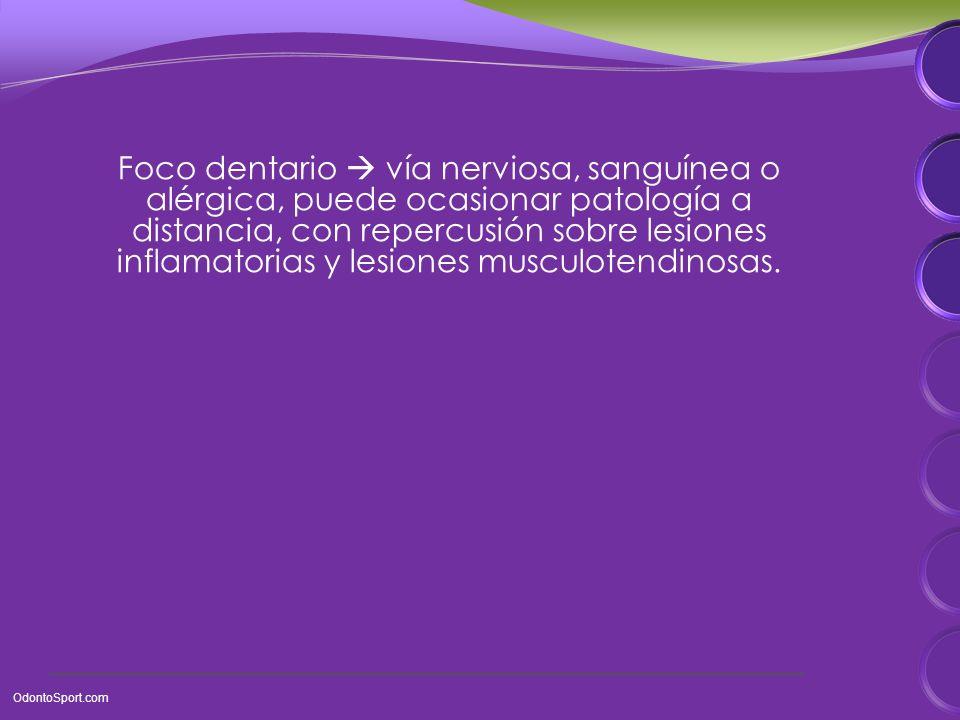 Foco dentario vía nerviosa, sanguínea o alérgica, puede ocasionar patología a distancia, con repercusión sobre lesiones inflamatorias y lesiones musculotendinosas.
