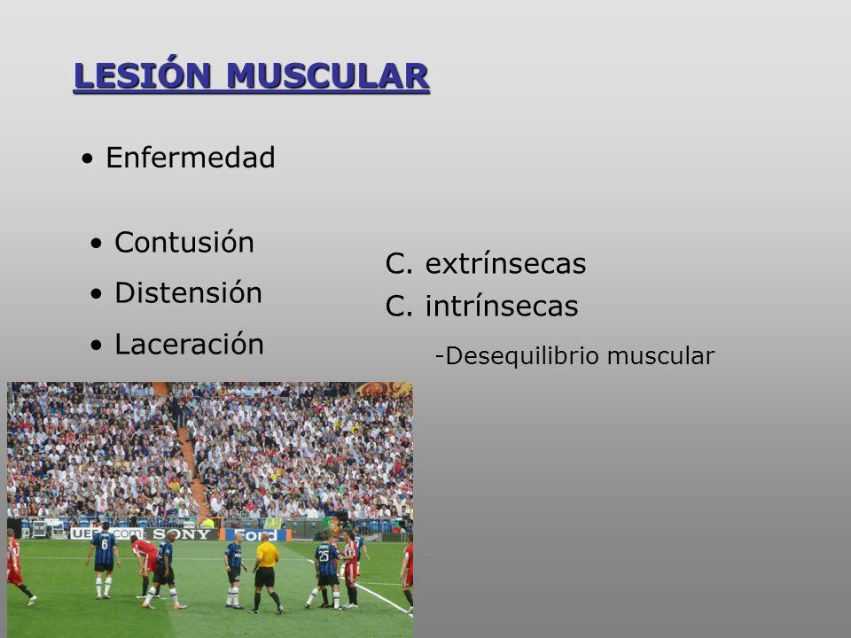 Contracción muscular exagerada Asincronismo muscular Microtraumatismos en guillotina … Por estiramiento (Strain) MECANISMO LESIONAL