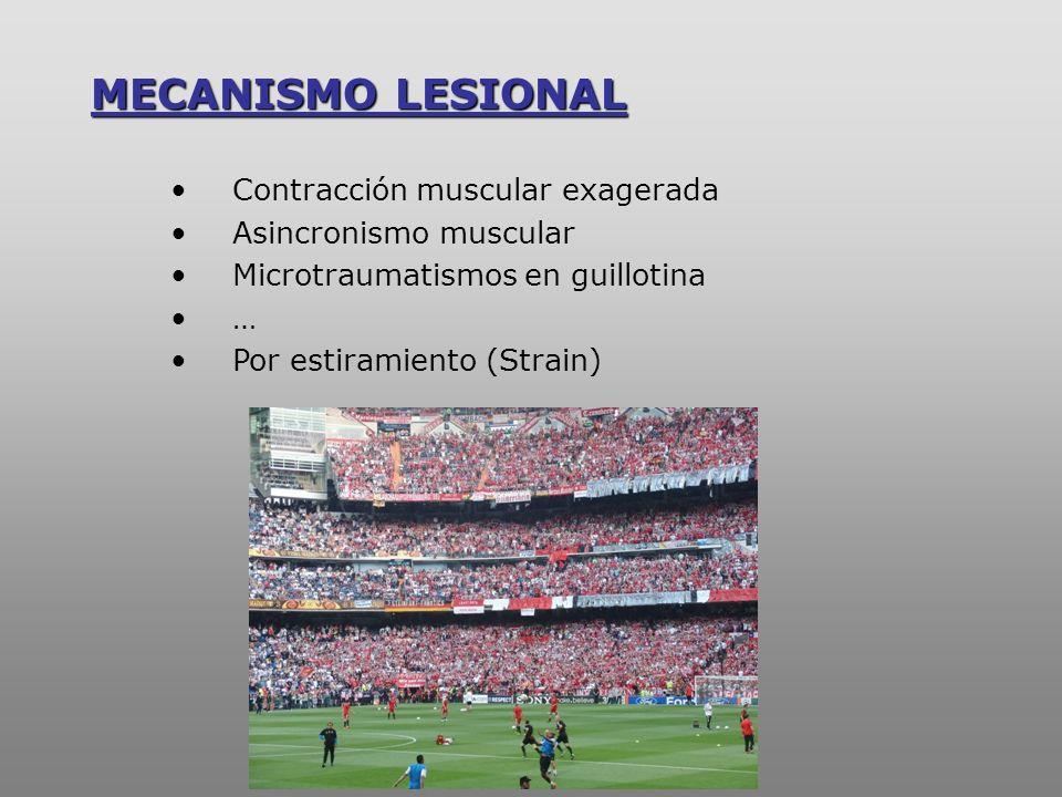 MECANISMO LESIONAL –strain- Longitud FuerzaFuerza Músculo contraído Ms relajado -Garret W.E.