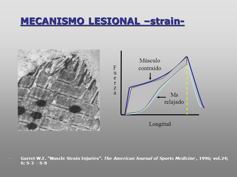 MECANISMO LESIONAL –strain- Longitud FuerzaFuerza Músculo contraído Ms relajado -Garret W.E. Muscle Strain Injuries. The American Journal of Sports Me