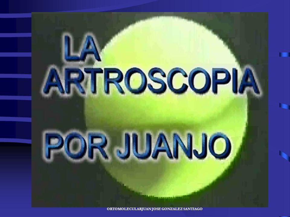 JUAN JOSÉ GONZÁLEZ SANTIAGO- ESPECIALISTA EN MEDICINA DEPORTIVA Y ORTOMOLECULARJUAN JOSÉ GONZÁLEZ SANTIAGO En Traumatología y cirugía ortopédica el di