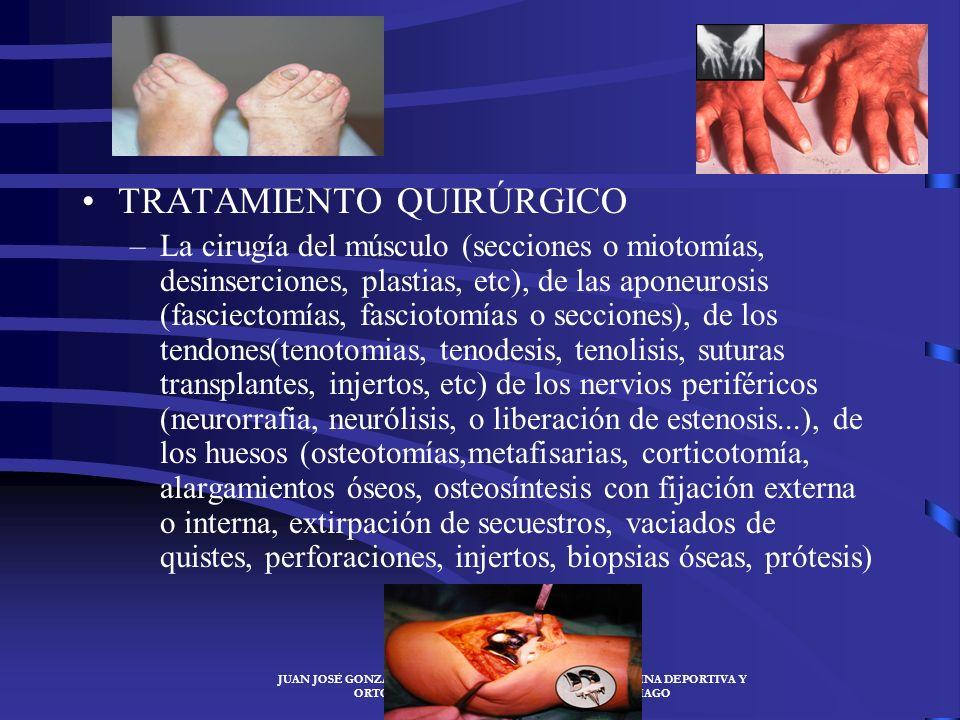 JUAN JOSÉ GONZÁLEZ SANTIAGO- ESPECIALISTA EN MEDICINA DEPORTIVA Y ORTOMOLECULARJUAN JOSÉ GONZÁLEZ SANTIAGO ORTOPEDIA: inmovilizar la parte lesionada c