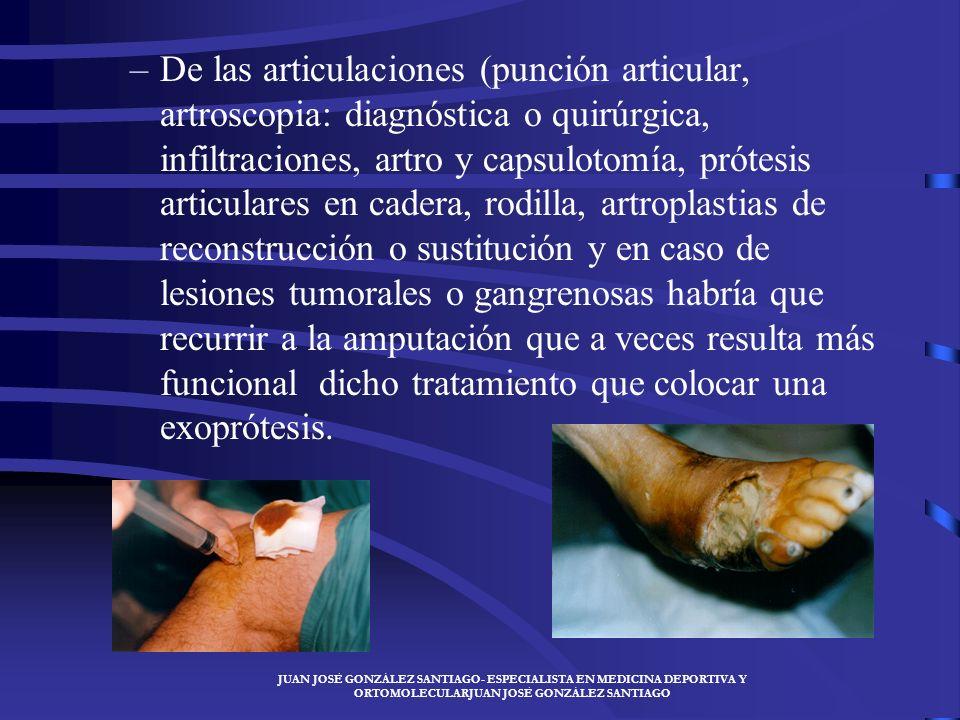 JUAN JOSÉ GONZÁLEZ SANTIAGO- ESPECIALISTA EN MEDICINA DEPORTIVA Y ORTOMOLECULARJUAN JOSÉ GONZÁLEZ SANTIAGO TRATAMIENTO QUIRÚRGICO –La cirugía del músc