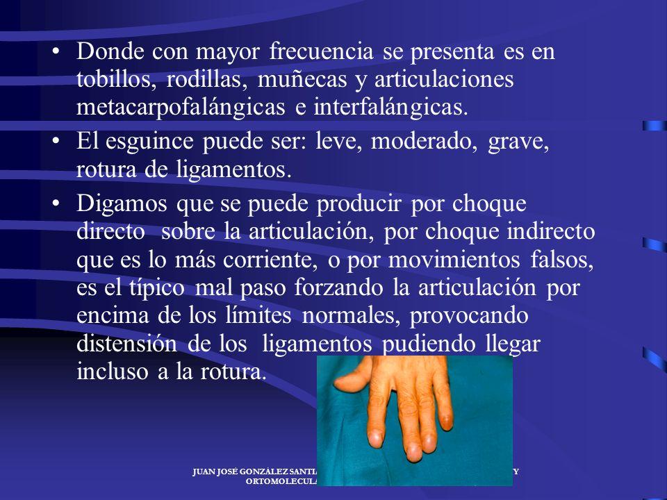 JUAN JOSÉ GONZÁLEZ SANTIAGO- ESPECIALISTA EN MEDICINA DEPORTIVA Y ORTOMOLECULARJUAN JOSÉ GONZÁLEZ SANTIAGO LESIONES ARTICULARES DEL A.L. Son aquellas