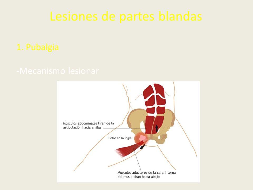 Lesiones de partes blandas 1.Pubalgia -Mecanismo lesionar