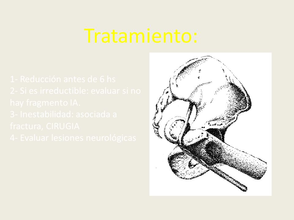 Tratamiento: 1- Reducción antes de 6 hs 2- Si es irreductible: evaluar si no hay fragmento IA. 3- Inestabilidad: asociada a fractura, CIRUGIA 4- Evalu