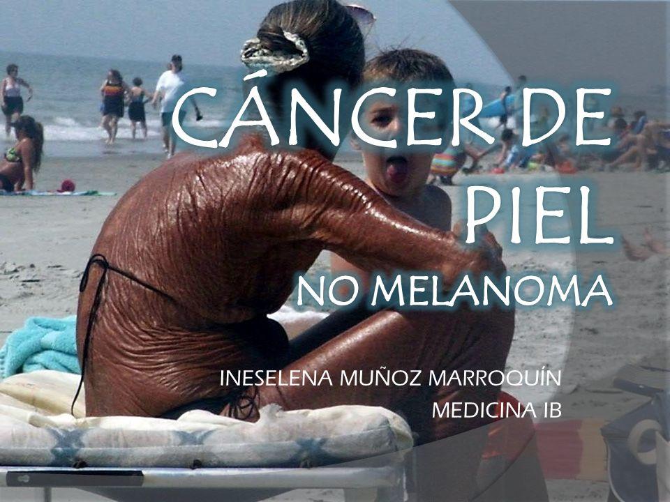 Es el tumor maligno más frecuente en la especie humana.