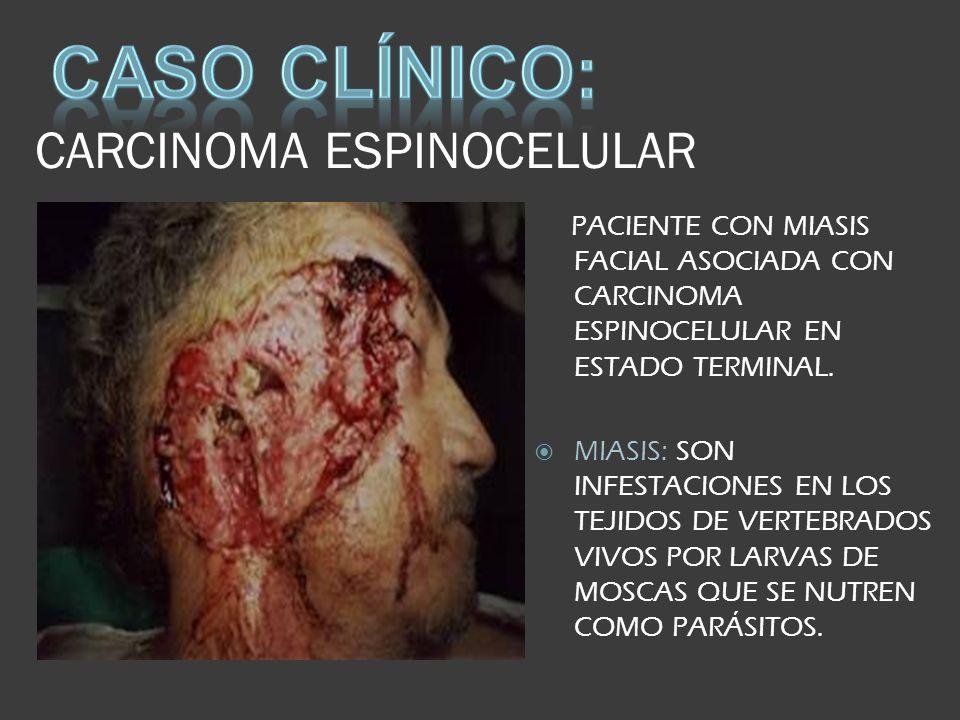 CARCINOMA ESPINOCELULAR PACIENTE CON MIASIS FACIAL ASOCIADA CON CARCINOMA ESPINOCELULAR EN ESTADO TERMINAL. MIASIS: SON INFESTACIONES EN LOS TEJIDOS D