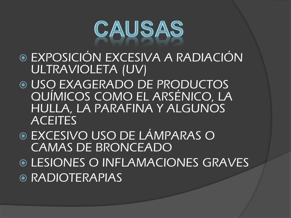 EXPOSICIÓN EXCESIVA A RADIACIÓN ULTRAVIOLETA (UV) USO EXAGERADO DE PRODUCTOS QUÍMICOS COMO EL ARSÉNICO, LA HULLA, LA PARAFINA Y ALGUNOS ACEITES EXCESIVO USO DE LÁMPARAS O CAMAS DE BRONCEADO LESIONES O INFLAMACIONES GRAVES RADIOTERAPIAS