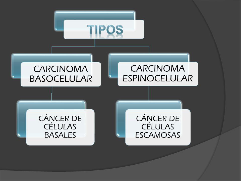 CARCINOMA BASOCELULAR CÁNCER DE CÉLULAS BASALES CARCINOMA ESPINOCELULAR CÁNCER DE CÉLULAS ESCAMOSAS