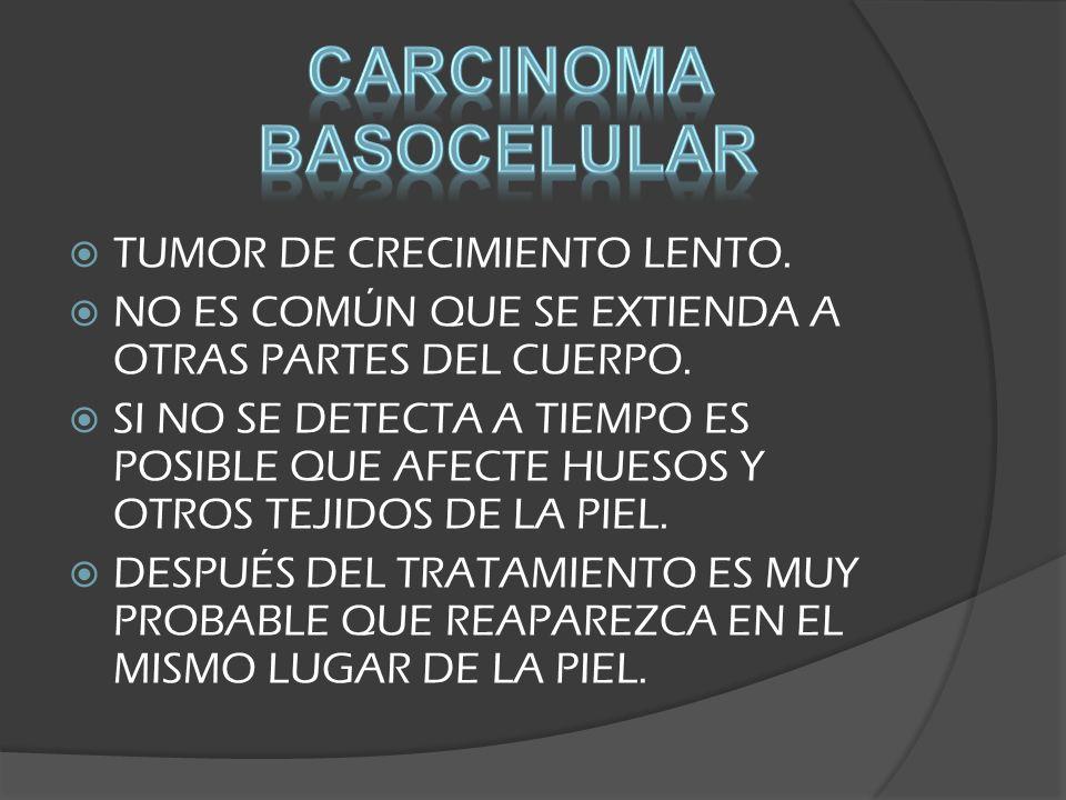 CARCINOMA BASOCELULAR DE ASPECTO NODULAR CARCINOMA BASOCELULAR PIGMENTADO
