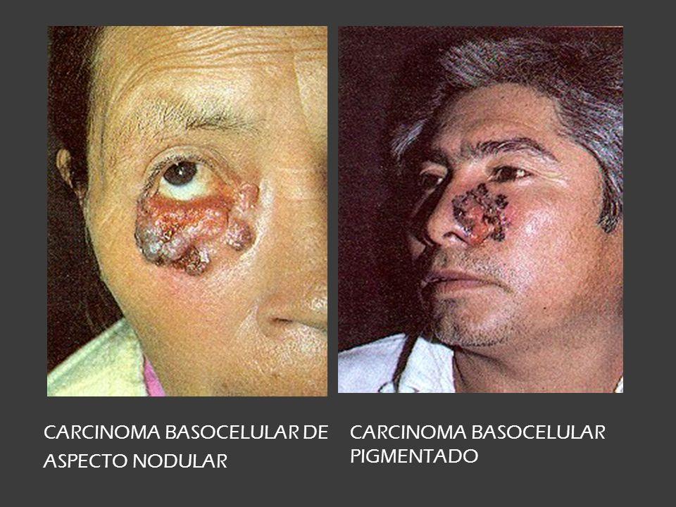Carcinoma ulceroso CARCINOMA EPIDERMOIDE CARCINOMA CON TUMORACIÓN CARCINOMAS ULCEROSOS