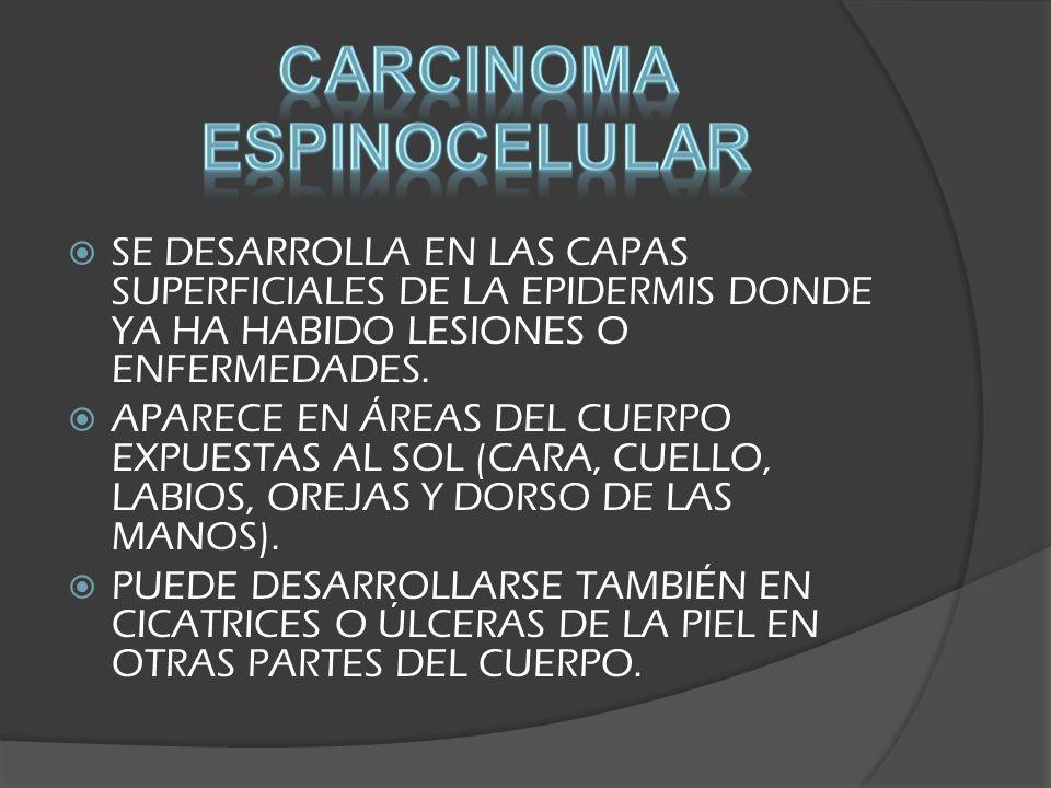 SE DESARROLLA EN LAS CAPAS SUPERFICIALES DE LA EPIDERMIS DONDE YA HA HABIDO LESIONES O ENFERMEDADES. APARECE EN ÁREAS DEL CUERPO EXPUESTAS AL SOL (CAR