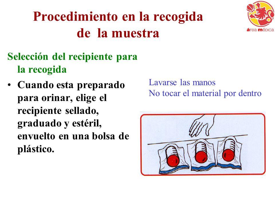 Procedimiento en la recogida de la muestra Selección del recipiente para la recogida Cuando esta preparado para orinar, elige el recipiente sellado, g