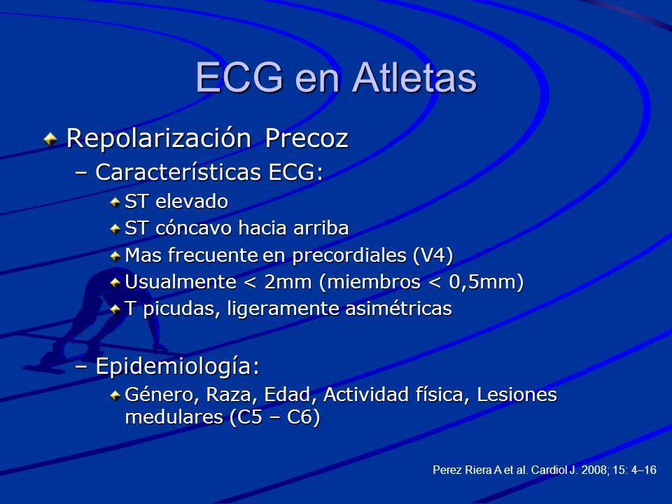 ECG en Atletas Repolarización Precoz –Características ECG: ST elevado ST cóncavo hacia arriba Mas frecuente en precordiales (V4) Usualmente < 2mm (mie