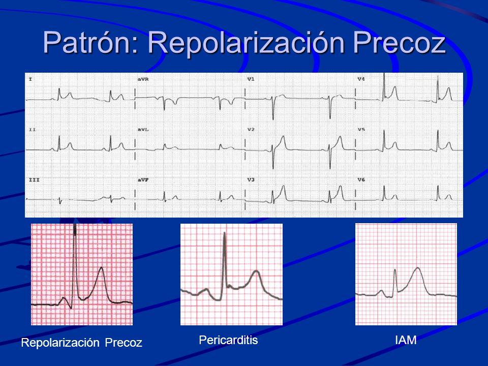 Patrón: Repolarización Precoz PericarditisIAM Repolarización Precoz