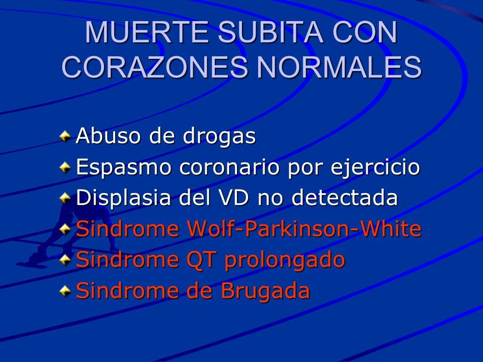 MUERTE SUBITA CON CORAZONES NORMALES Abuso de drogas Espasmo coronario por ejercicio Displasia del VD no detectada Sindrome Wolf-Parkinson-White Sindr