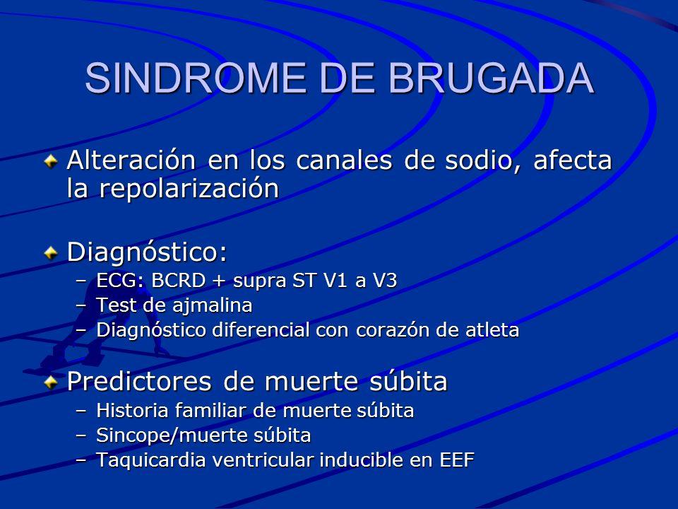 SINDROME DE BRUGADA Alteración en los canales de sodio, afecta la repolarización Diagnóstico: –ECG: BCRD + supra ST V1 a V3 –Test de ajmalina –Diagnós