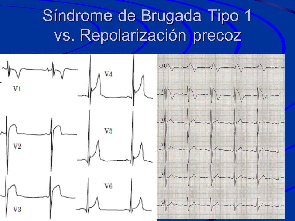 Síndrome de Brugada Tipo 1 vs. Repolarización precoz
