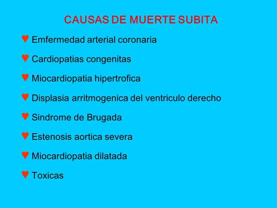 CAUSAS DE MUERTE SUBITA Emfermedad arterial coronaria Cardiopatias congenitas Miocardiopatia hipertrofica Displasia arritmogenica del ventriculo derec