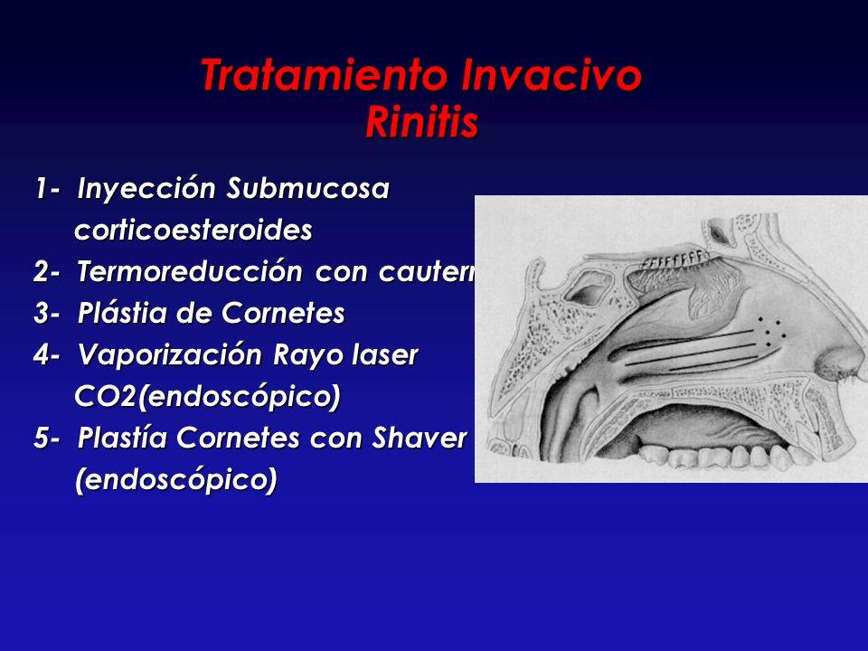 Tratamiento Invacivo Rinitis 1- Inyección Submucosa 1- Inyección Submucosa corticoesteroides corticoesteroides 2- Termoreducción con cauterrio 2- Term