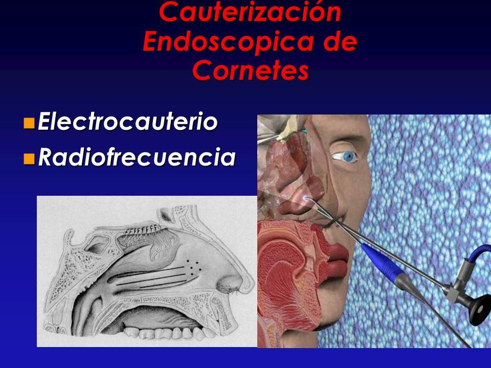 Cauterización Endoscopica de Cornetes Electrocauterio Electrocauterio Radiofrecuencia Radiofrecuencia