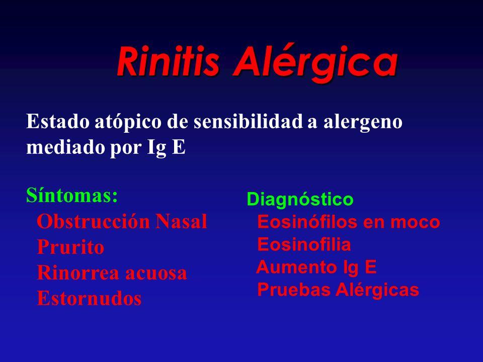 Rinitis Alérgica Estado atópico de sensibilidad a alergeno mediado por Ig E Síntomas: Obstrucción Nasal Prurito Rinorrea acuosa Estornudos Diagnóstico